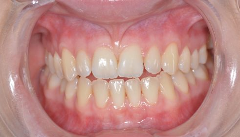 Fixed Brace (6 months smile) & Whitening - Before