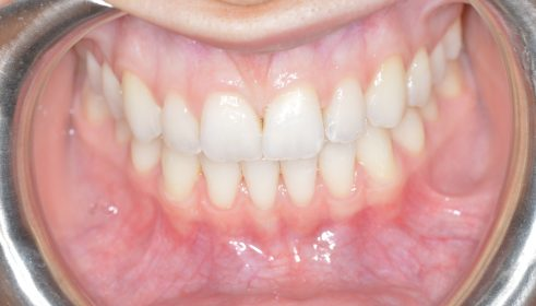 Fixed Brace (6 months smile) & Whitening - After