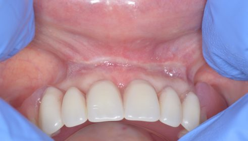 Frenectomy - After
