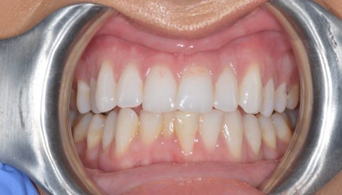 Fixed Brace (QST) Cosmetic Composite Bonding  - Before