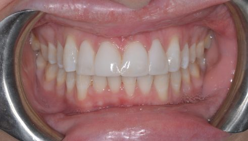 Fixed Brace (QST) Cosmetic Composite Bonding  - After