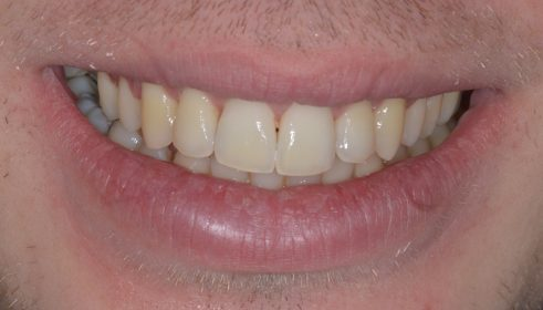 Fixed Brace (QST) - After