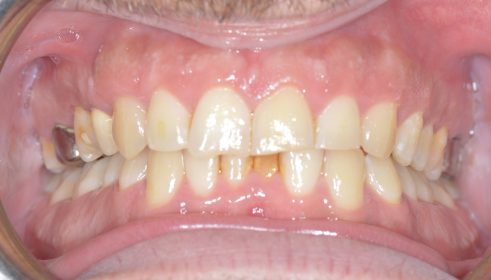 QST brace and Cosmetic composite veneers  - Before
