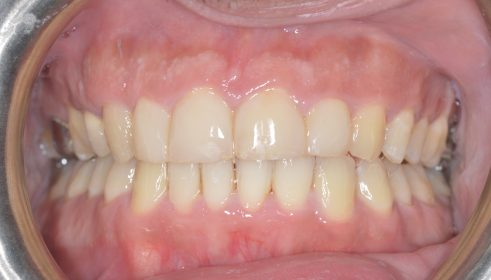 QST brace and Cosmetic composite veneers  - After